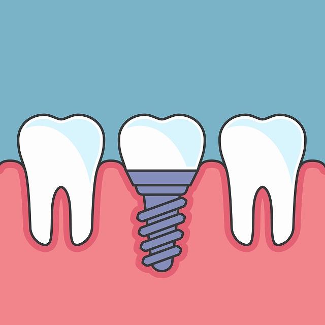 歯を失った時の治療法
