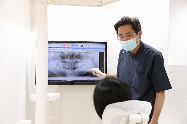 歯牙移植のメリット